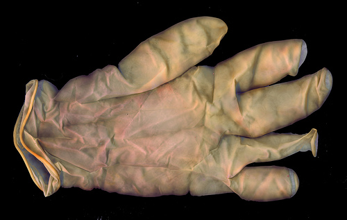 ゴム手袋でアレルギー!症状と対策!!手荒れ防止でゴム手袋でも手が荒れる場合は…